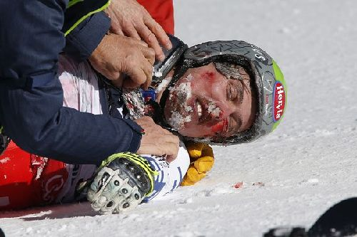 前奥运冠军滑雪道上摔伤