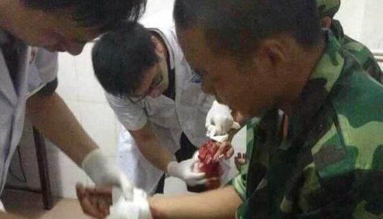 湖南军训教官与师生冲突致42伤